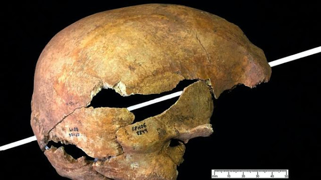 Eye Sheds Light On Horrific Injuries Caused By Medieval Arrows