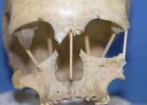 European Woman's 35,000-Year-Old Genome Sequenced
