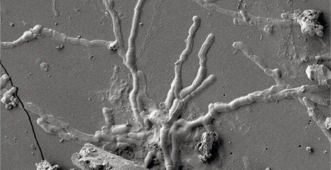 Well preserved 2,000-year-old brain cells found in Vesuvius victim